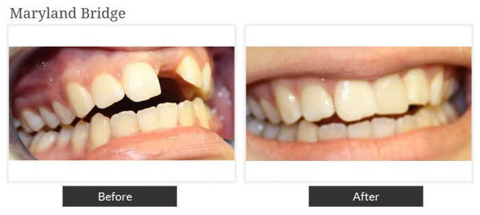 Before and after picture of maryland bridge service at Smile Designers Dental