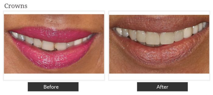 Before and after picture of crown service at Smile Designers Dental
