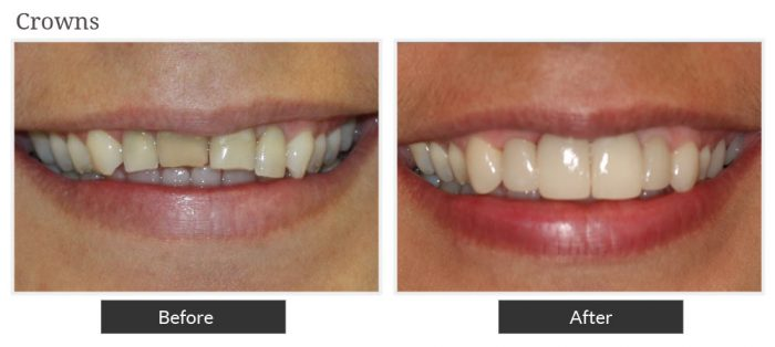 Before and after picture of crowns service at Smile Designers Dental