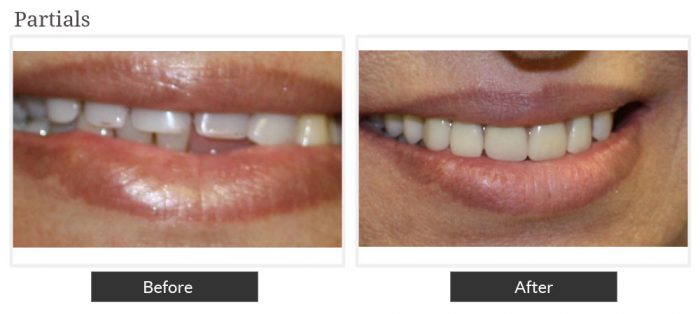 Before and after picture of partials service at Smile Designers Dental