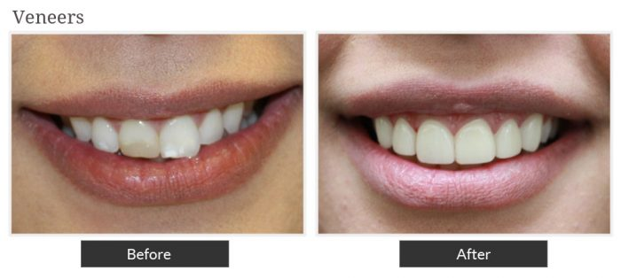Before and after picture of venneers service at Smile Designers Dental